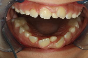 Extra Front Tooth in child patient