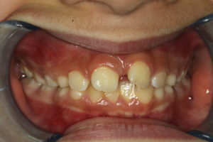 1 week after tooth removal