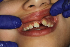 Extra front tooth removal treatment